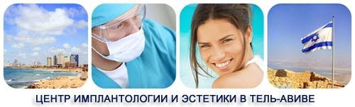 Клиника имплантологии и эстетики - Израиль